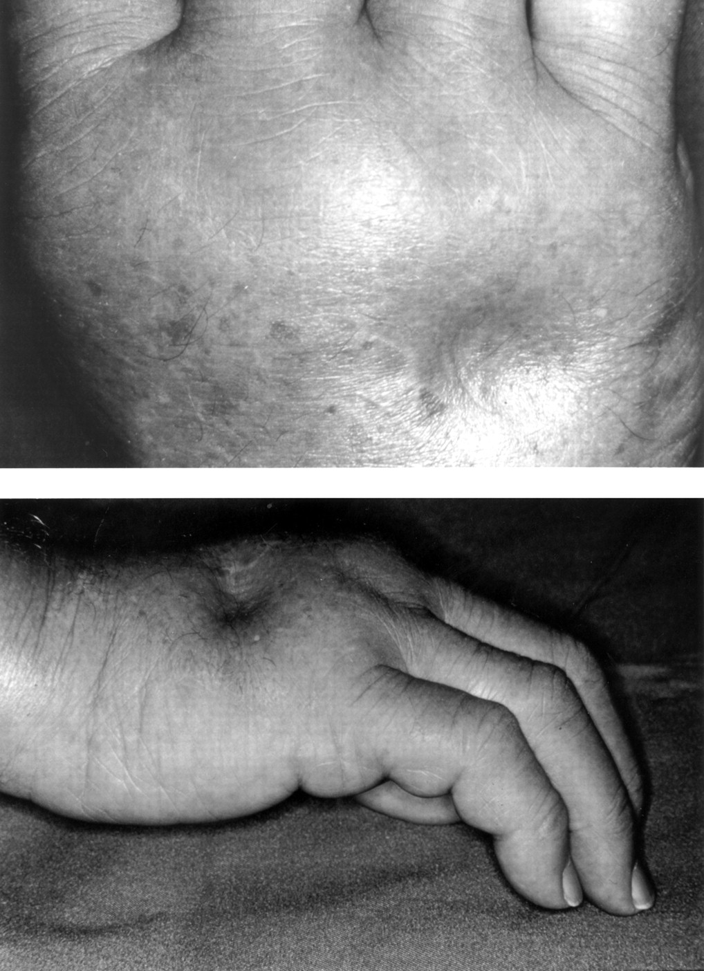 Polyarthritis and pitting oedema | Annals of the Rheumatic