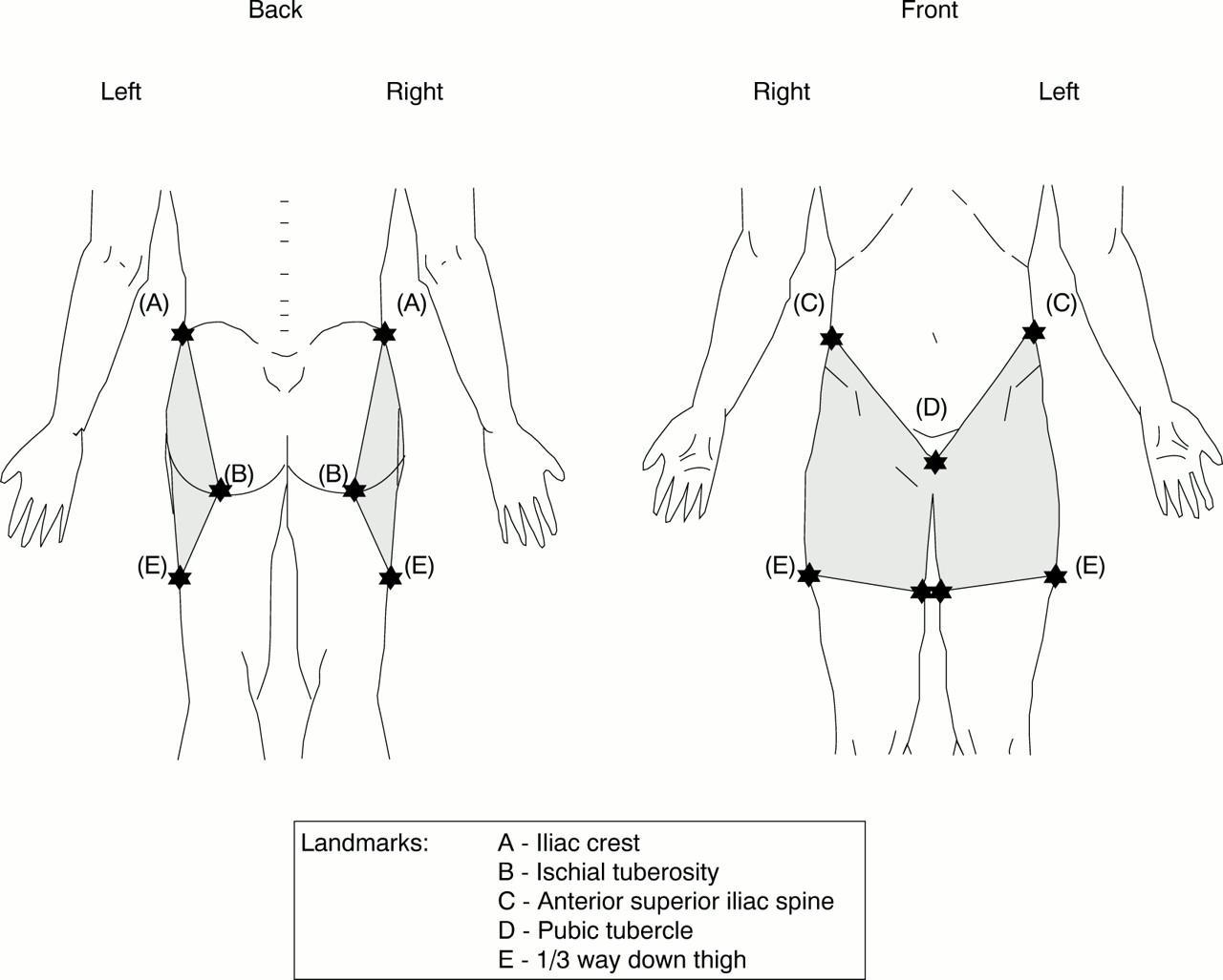hip pain location