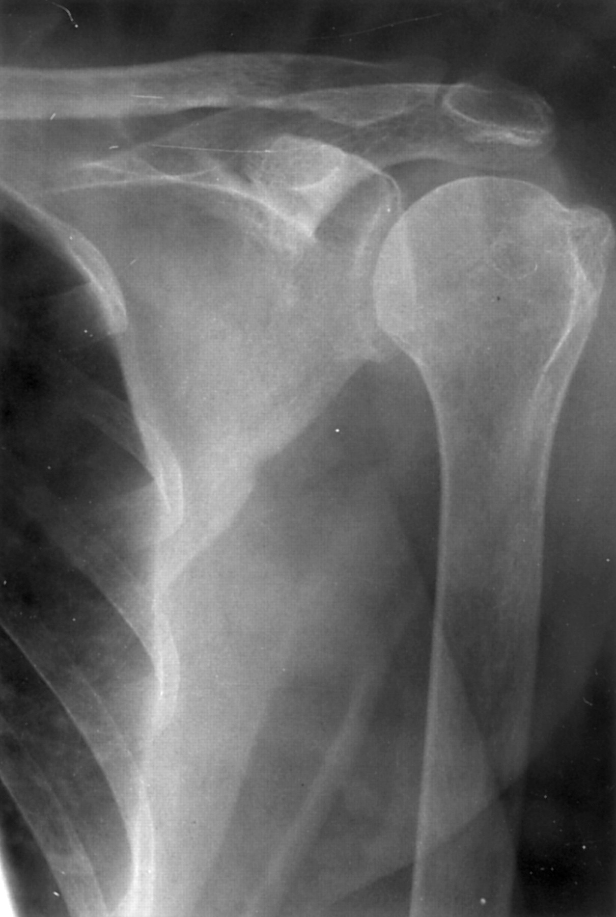 Relation Of Glenohumeral And Acromioclavicular Joint Destruction In