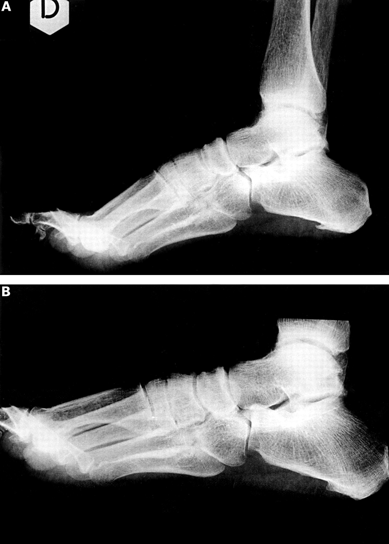 Shock wave therapy of the heel spur: prices, mechanism of action. Heel Spur Treatment Methods 61