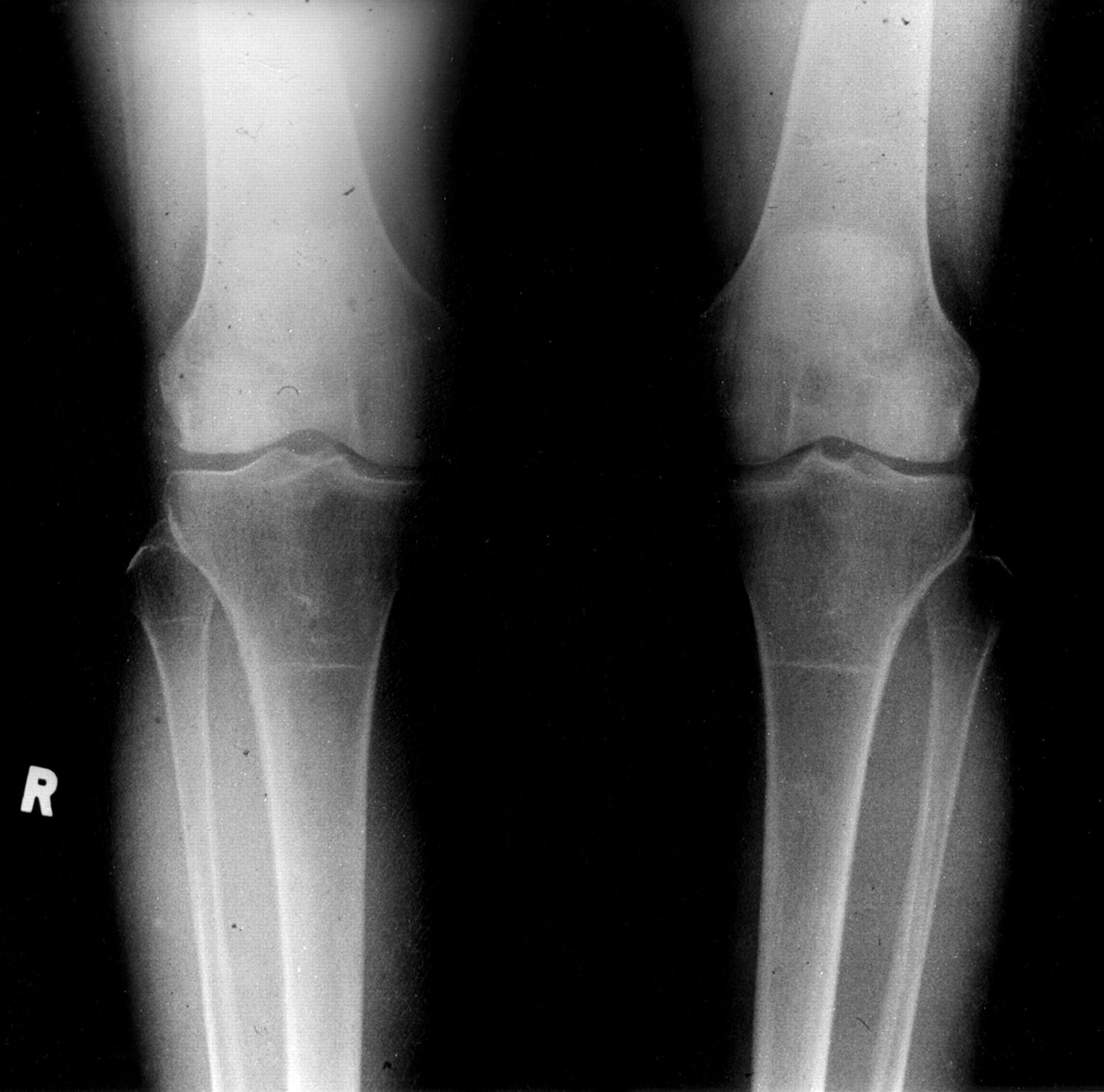 Debilitating Knee Pain In A Patient With Normal Radiographs