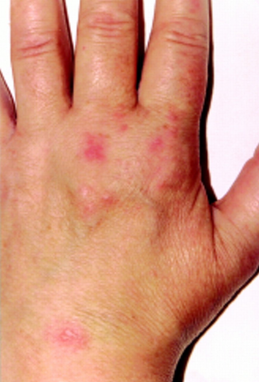 A case of shingles mimicking carpal tunnel syndrome | Annals