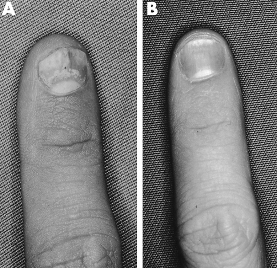 Nail deformities were present in both hands (fig 1A) and feet. Psoriatic
