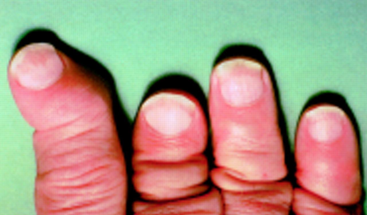 psoriasis handen