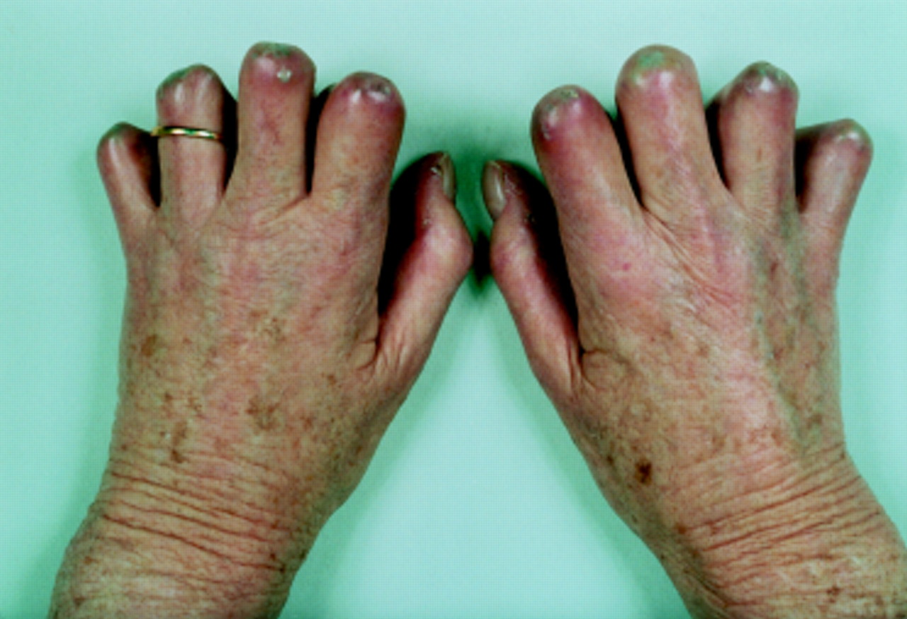 Treatment of cutaneous calcinosis in limited systemic ...