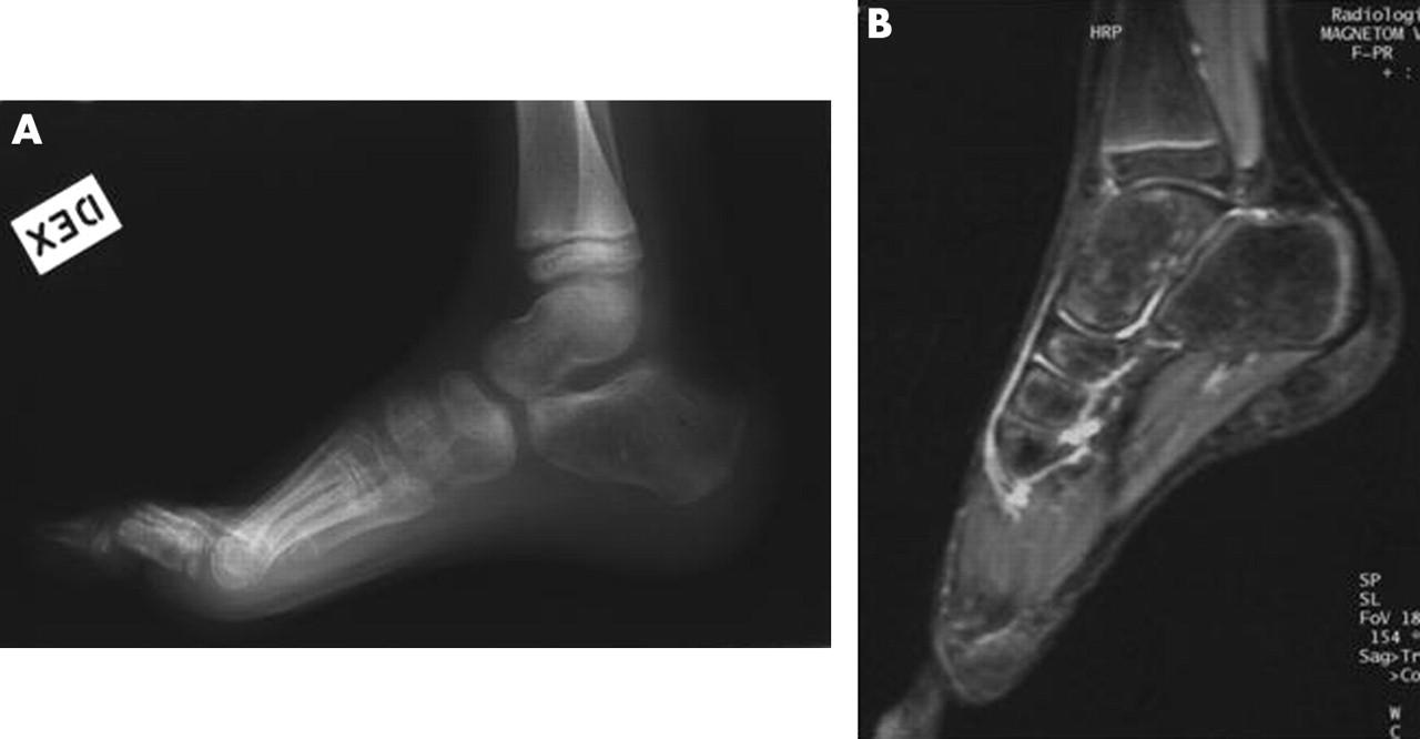 Transient Bone Marrow Oedema In A Child Annals Of The Rheumatic