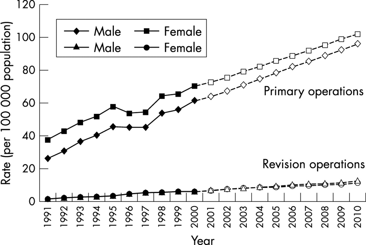 Download figure · Open in new tab · Download powerpoint. Figure 3. Trends  in primary and revision knee replacement ...