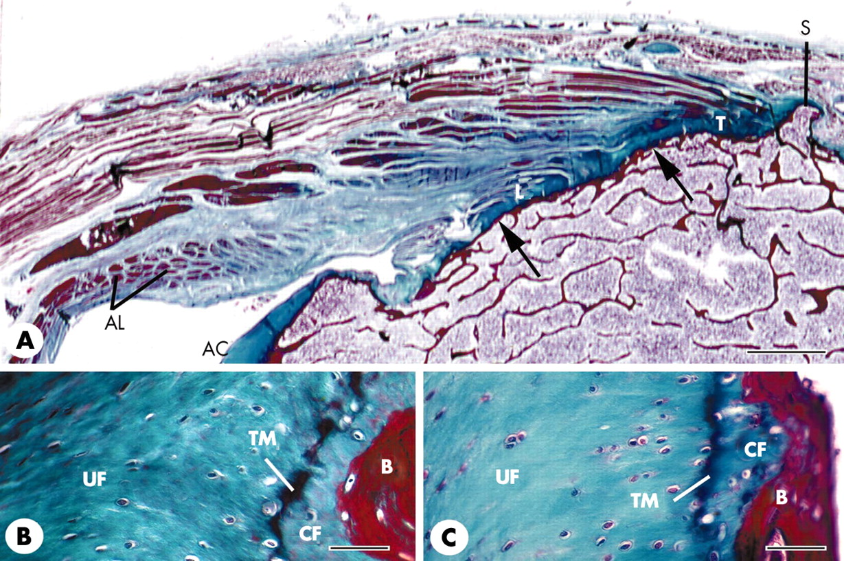enthesis organ anatomy The enthesis organ of the achilles tendon includes three fibrocartilages (fc) - an enthesis fc at the tendon-bone junction, together with two fibrocartilages that form the bursal walls and protect them from compression (rufai et al 1995.
