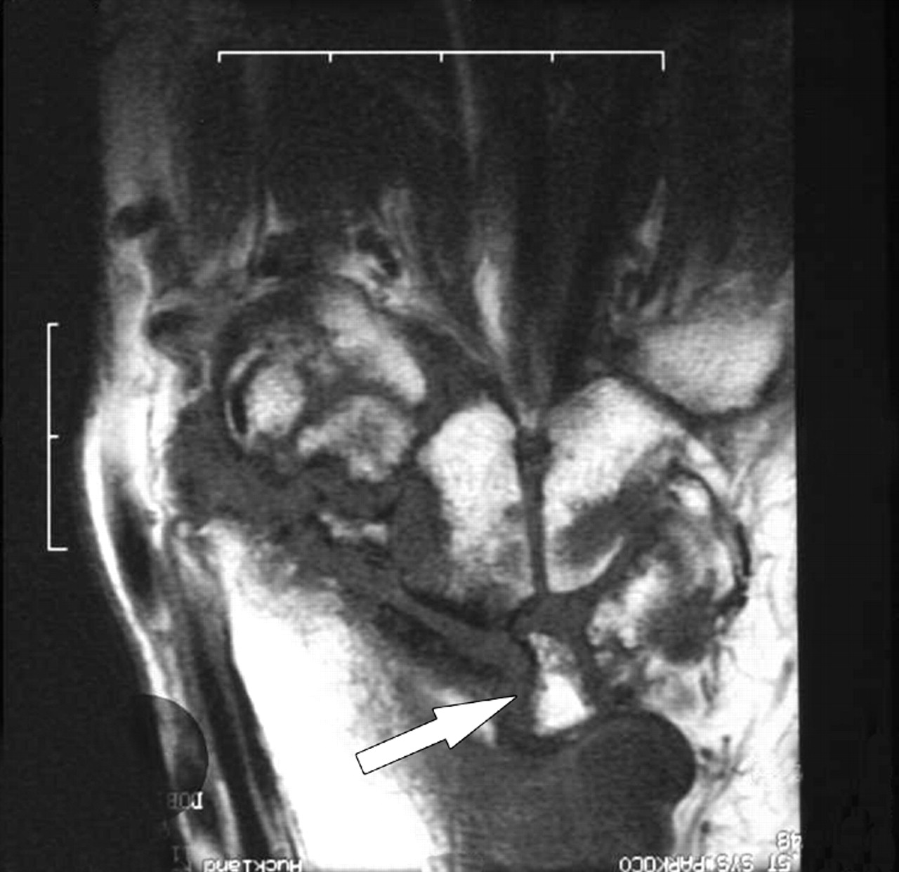 Pitfalls in scoring MR images of rheumatoid arthritis wrist and ...