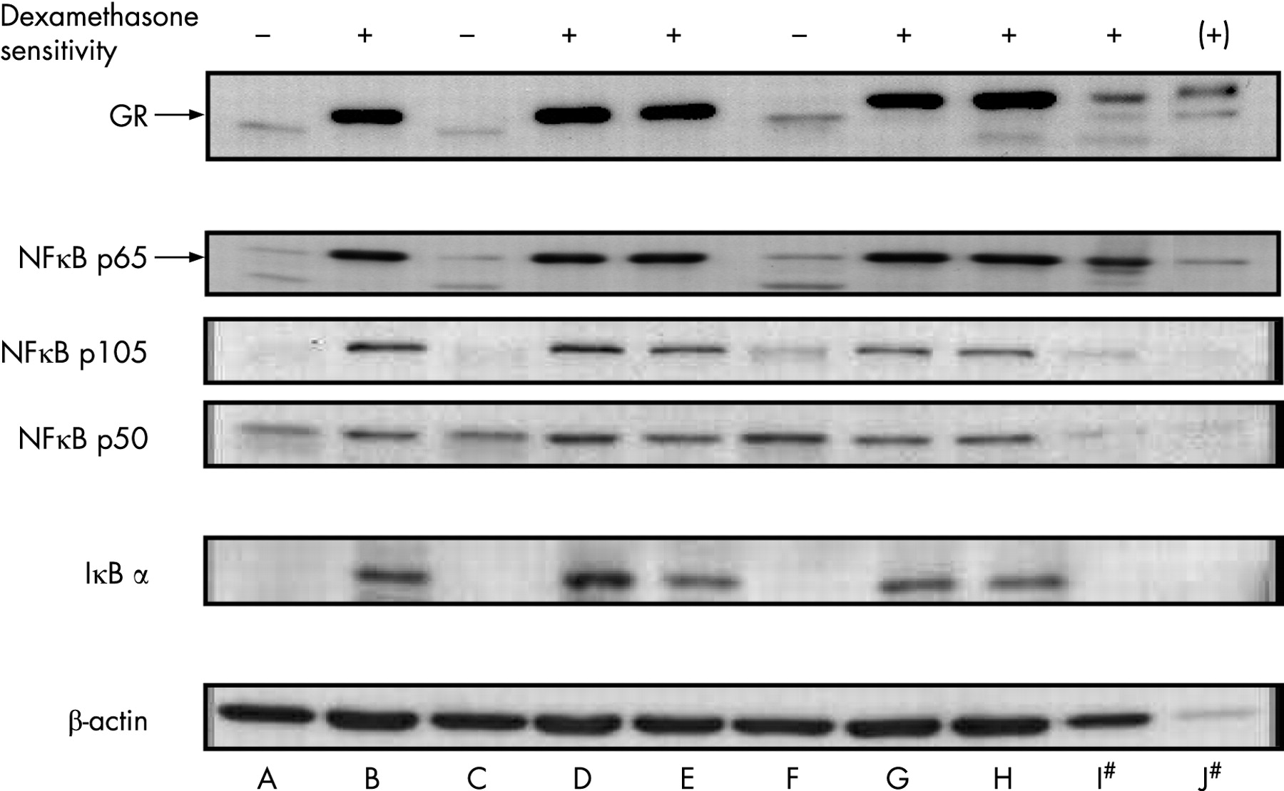 Macrophage Protein Expression Protein Expression in Thp1