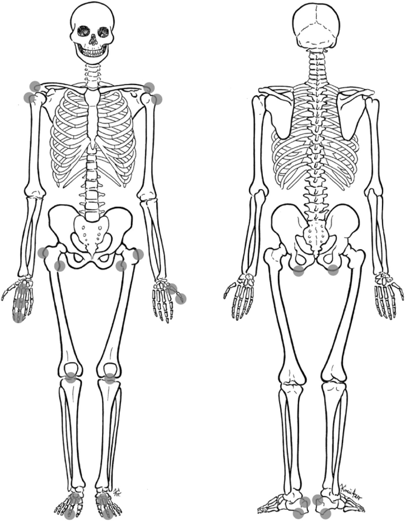 Mri Of Enthesitis Of The Appendicular Skeleton In Spondyloarthritis