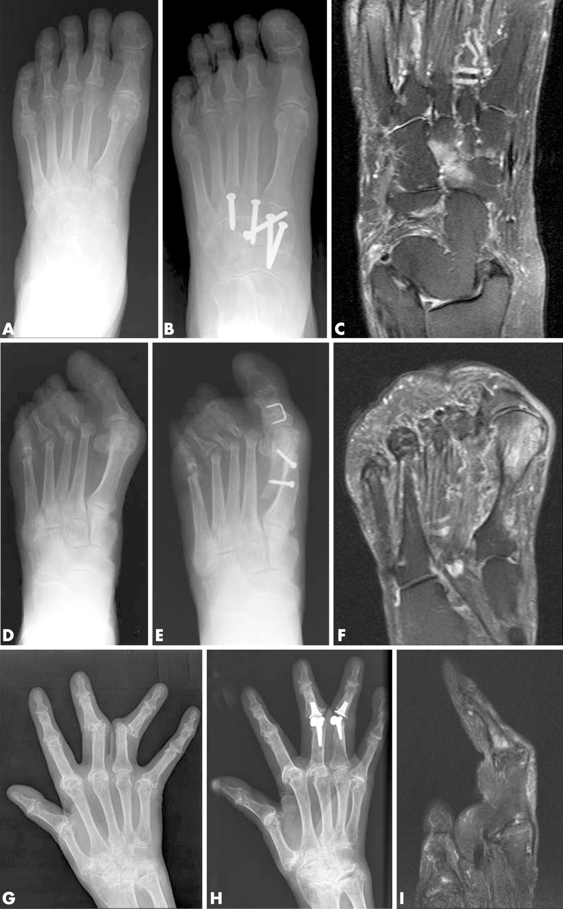 High-grade MRI bone oedema is common within the surgical field in ...