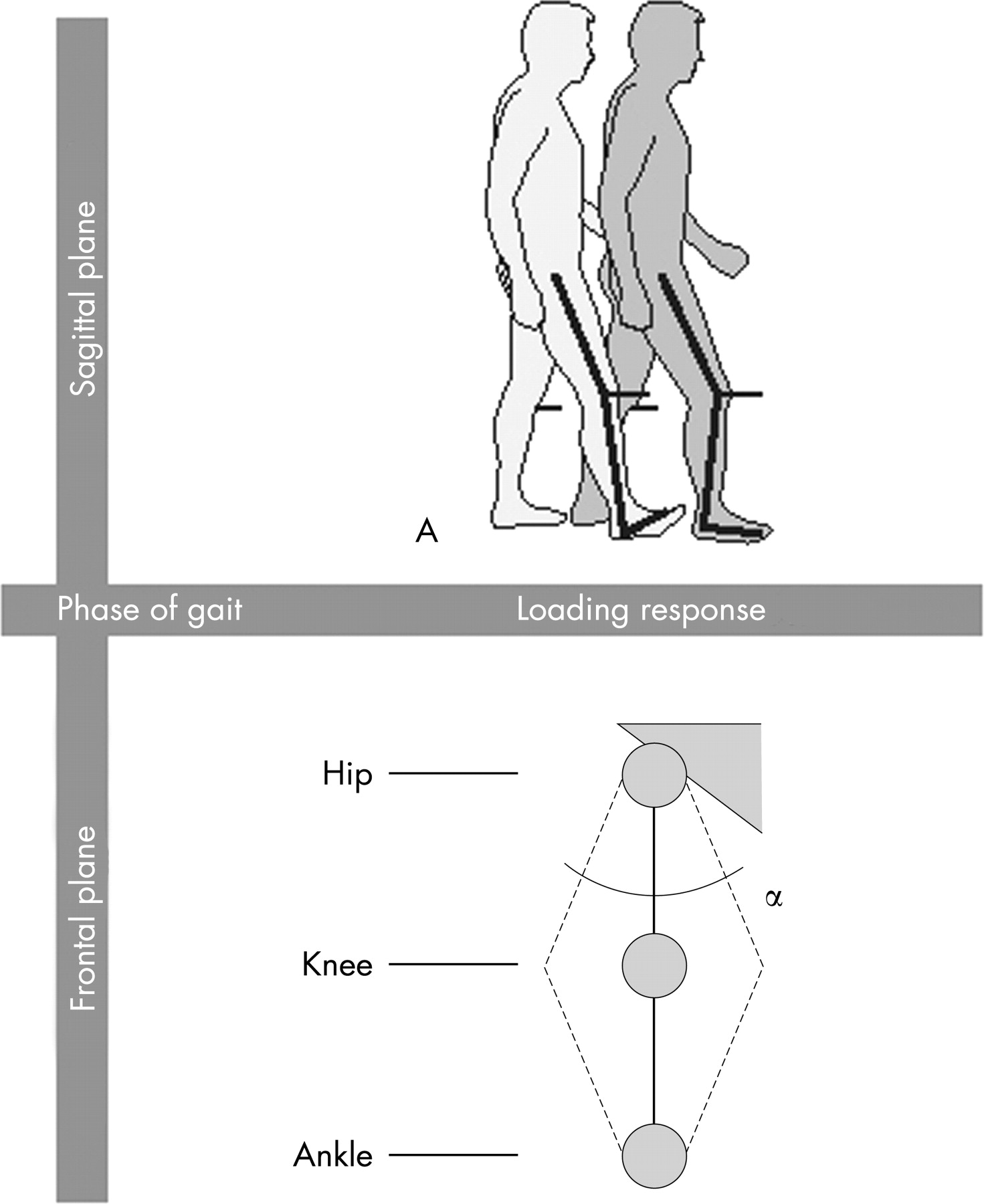 Varusvalgus Motion And Functional Ability In Patients With Knee
