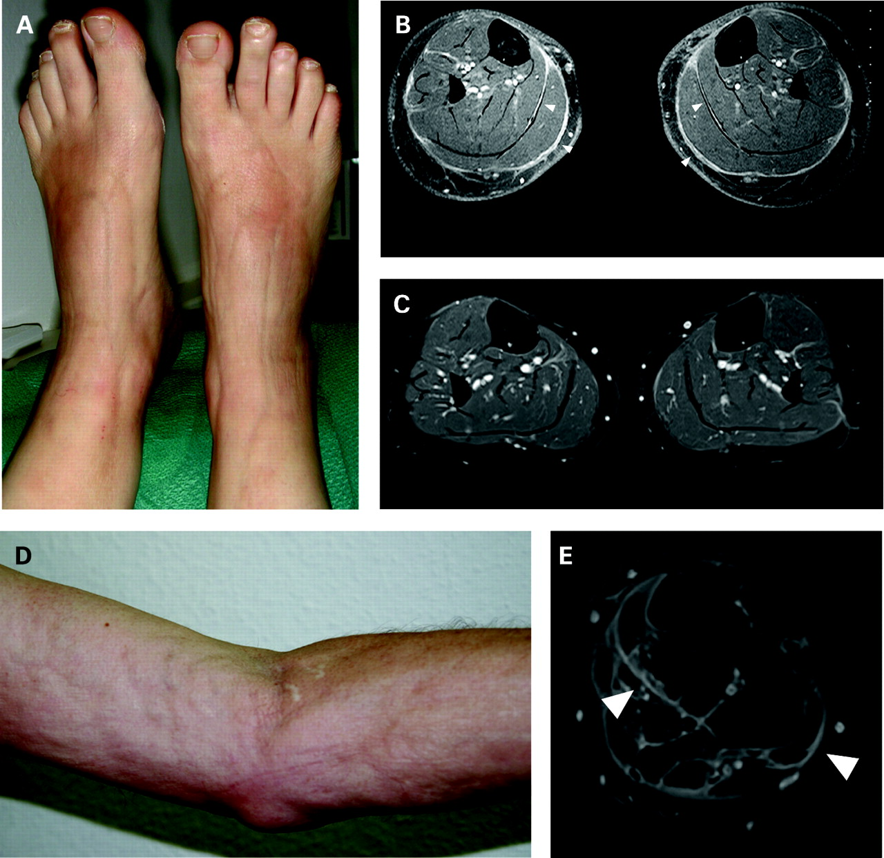 Can Mri Substitute For Biopsy In Eosinophilic Fasciitis Annals Of