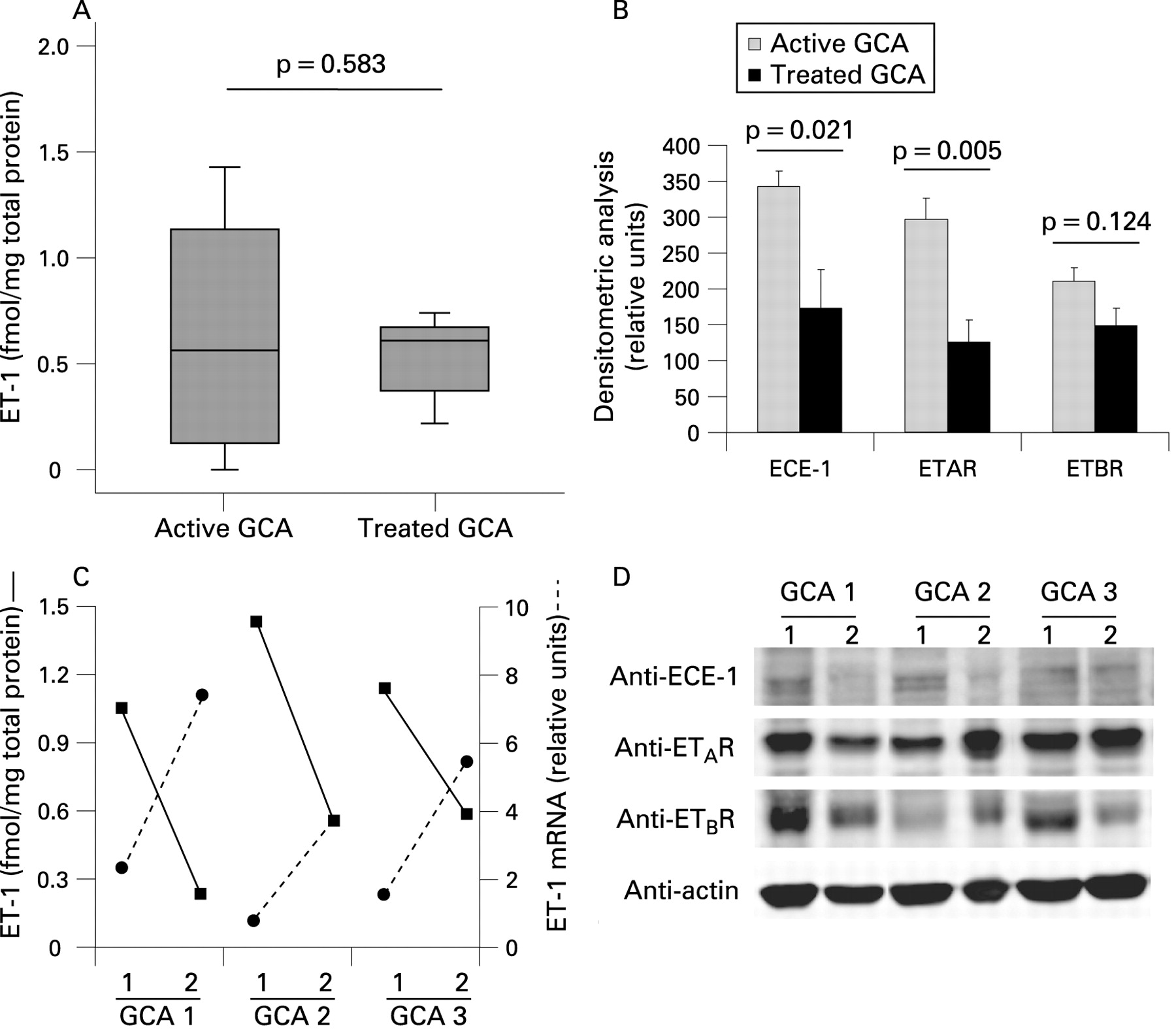 Increased Expression Of The Endothelin System In Arterial Lesions