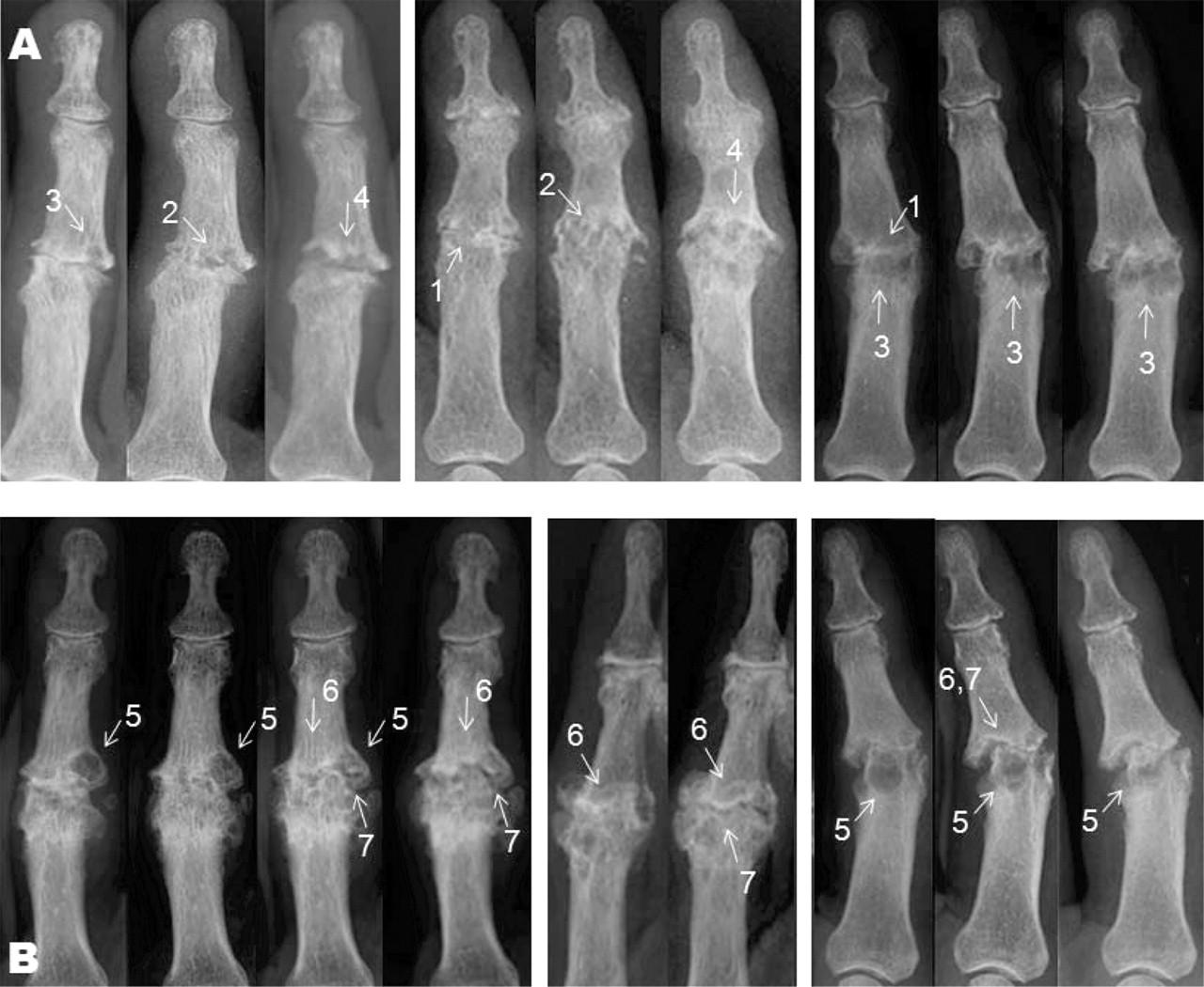 Morbid anatomy of \'erosive osteoarthritis\' of the interphalangeal ...