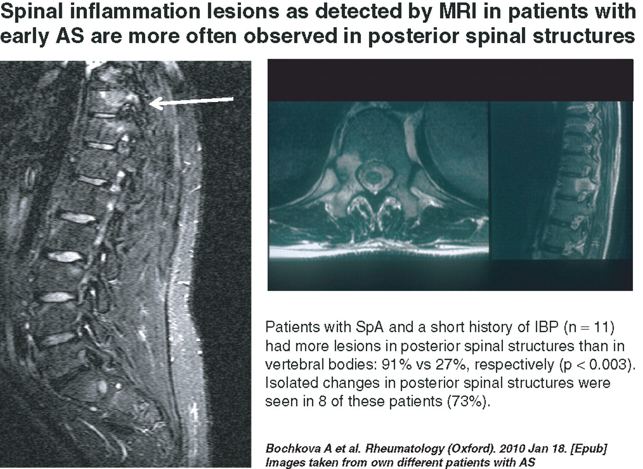 imaging of axial spondyloarthritis including ankylosing