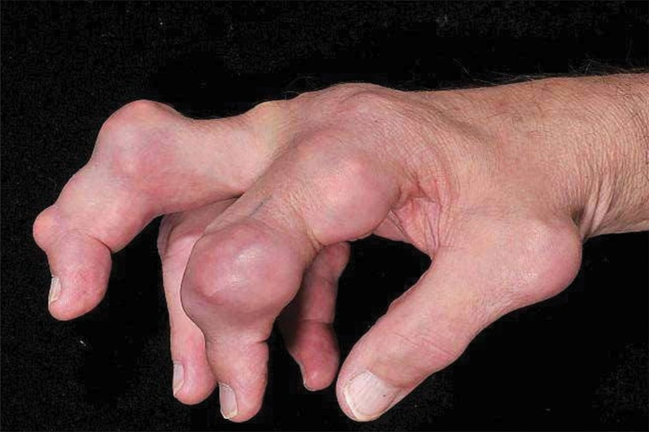 diets to reduce high uric acid gout treatment when taking warfarin new medicines for gout