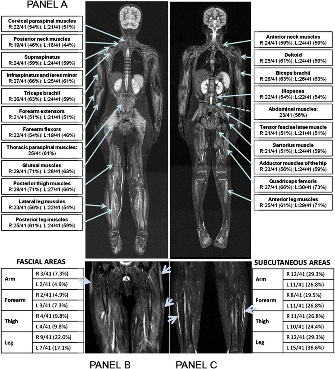 Whole Body Mri In The Assessment Of Disease Activity In Juvenile