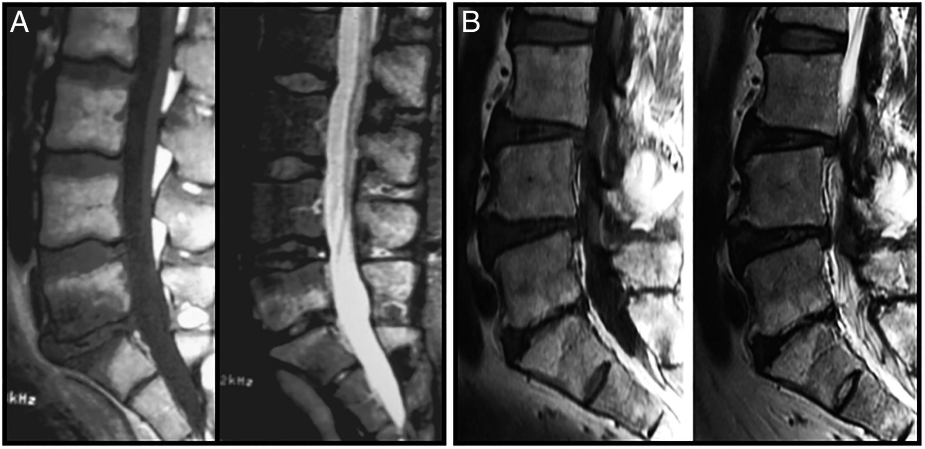 From Modic 1 Vertebral Endplate Subchondral Bone Signal
