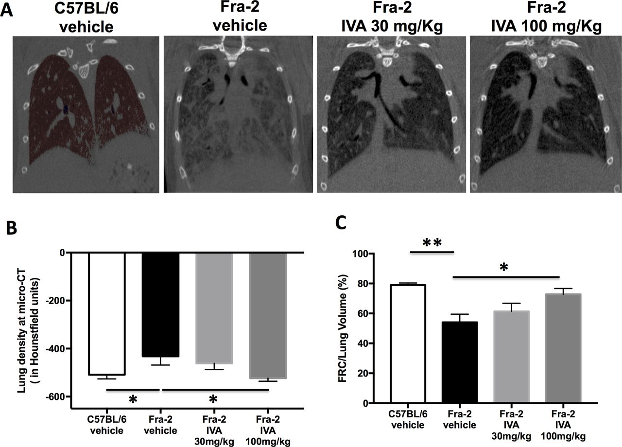 Pan-PPAR agonist IVA337 is effective in experimental lung fibrosis